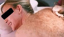 Electrolysis - back hair removal